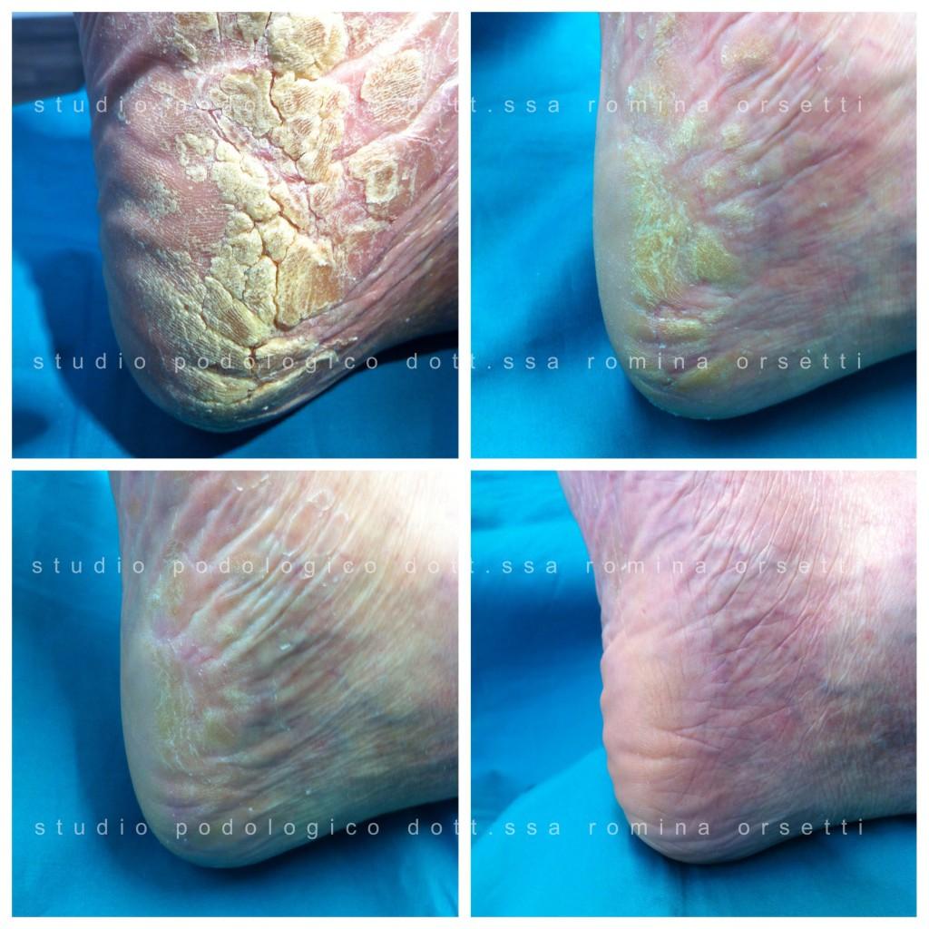 Fonte termica a psoriasi